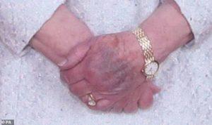 بالصورة- الملكة إليزابيت تثير الضجة بازرقاق يدها خلال زيارة الملك الأردني وزوجته لها